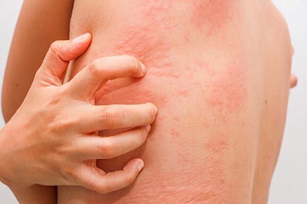 Аллергия на порошок тайд у взрослых