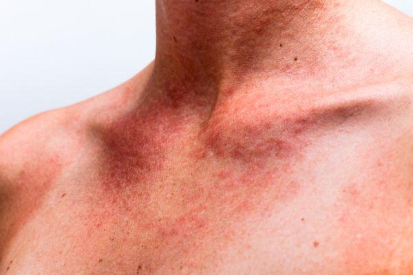 Мазь от аллергии на солнце: какая эффективная от аллергии на коже, лице, тайская