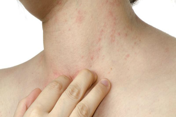 Спрей от дерматита