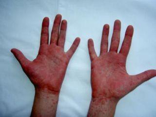 Кишечный иерсиниоз на руках