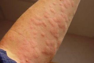 Аллергическая крапивница на руках
