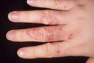 Грибок на коже рук