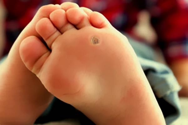 Как удалить бородавки на ступнях