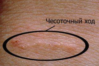 Чесоточный ход по кожей