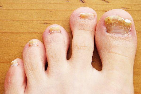 Эффективные средства от грибка ногтей: самые лучшие лекарства, цены, отзывы о лечении