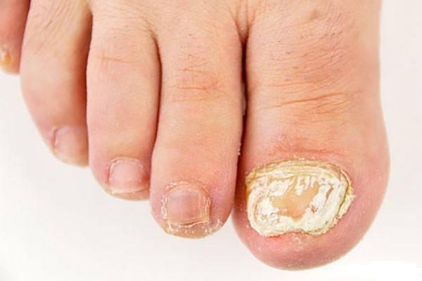 Лечение грибка ногтей лаком Офломил или Лоцерил: отзывы и сколько стоит?