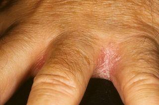 Трескается кожа на пальцах рук: причины, лечение в домашних условиях