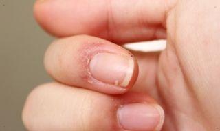 Трескается кожа рук на пальцах около ногтей