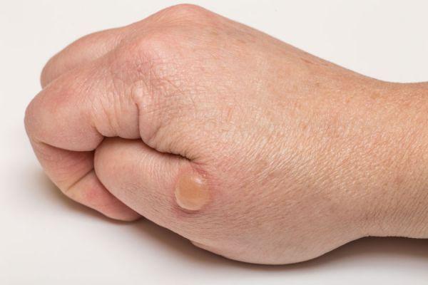 На пальце руки появился пузырь с жидкостью