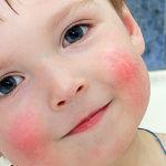 Атопический дерматит у ребенка на щеках