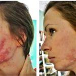 Фото до и после использования Доксициклина