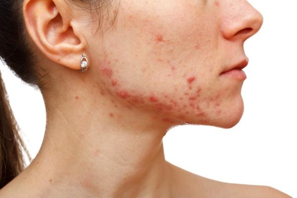 Как избавиться от демодекса на лице
