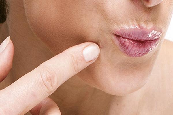 Плоские папилломы на теле: причины и лечение