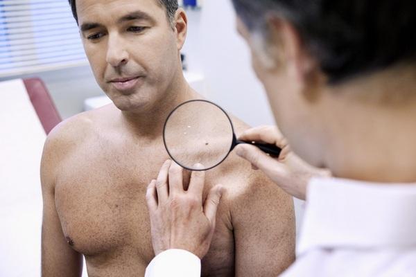Папилломавирус у мужчин фото лечение в домашних условиях быстро thumbnail