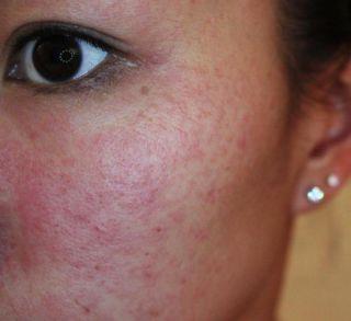 Аллергия на лице у девушки