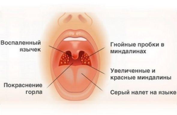 Симптомы герпесной ангины у взрослых