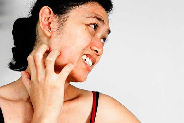 Народные средства от аллергии на руках и на лице — Аллергия и все о ней