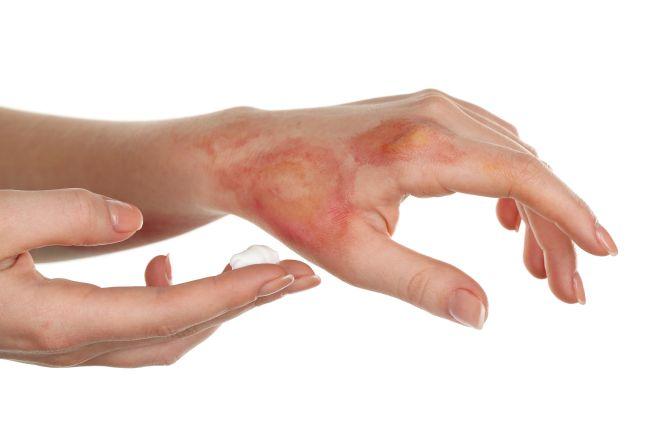 Мазь с обезболивающим эффектом для ран