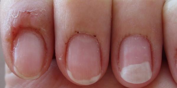 Аллергия на гель-лак: можно-ли её побороть?
