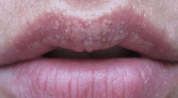 точки на губах