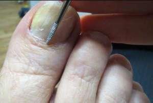 чешуйки ногтя