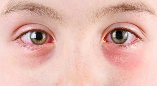 Покраснения под глазами у ребенка